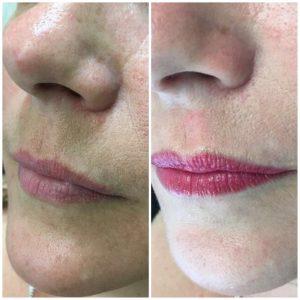 Lip colour boost